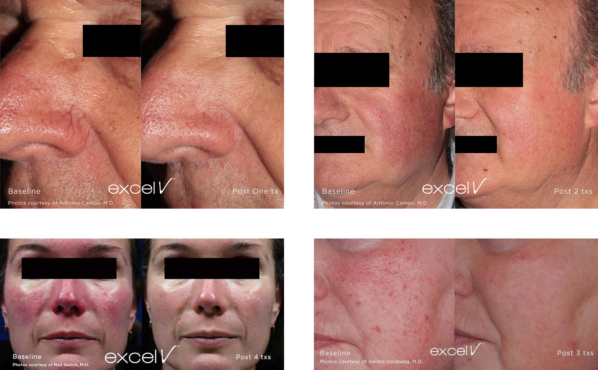 Before & After Photos of Excel V Treatments of Facial Veins