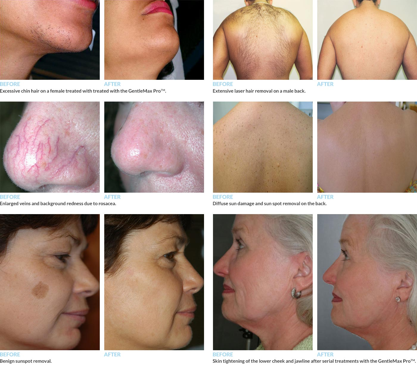 Before and After Photos of Patients Treated with GentleMax Pro