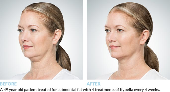 Before & After Photos of Kybella Treatments