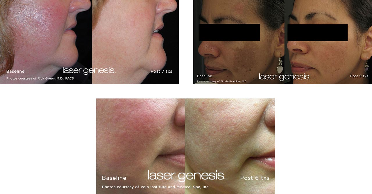Before & After Photos of Laser Genesis Treatments