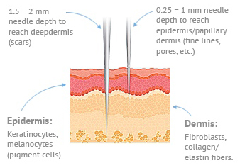 Microneedling Diagram