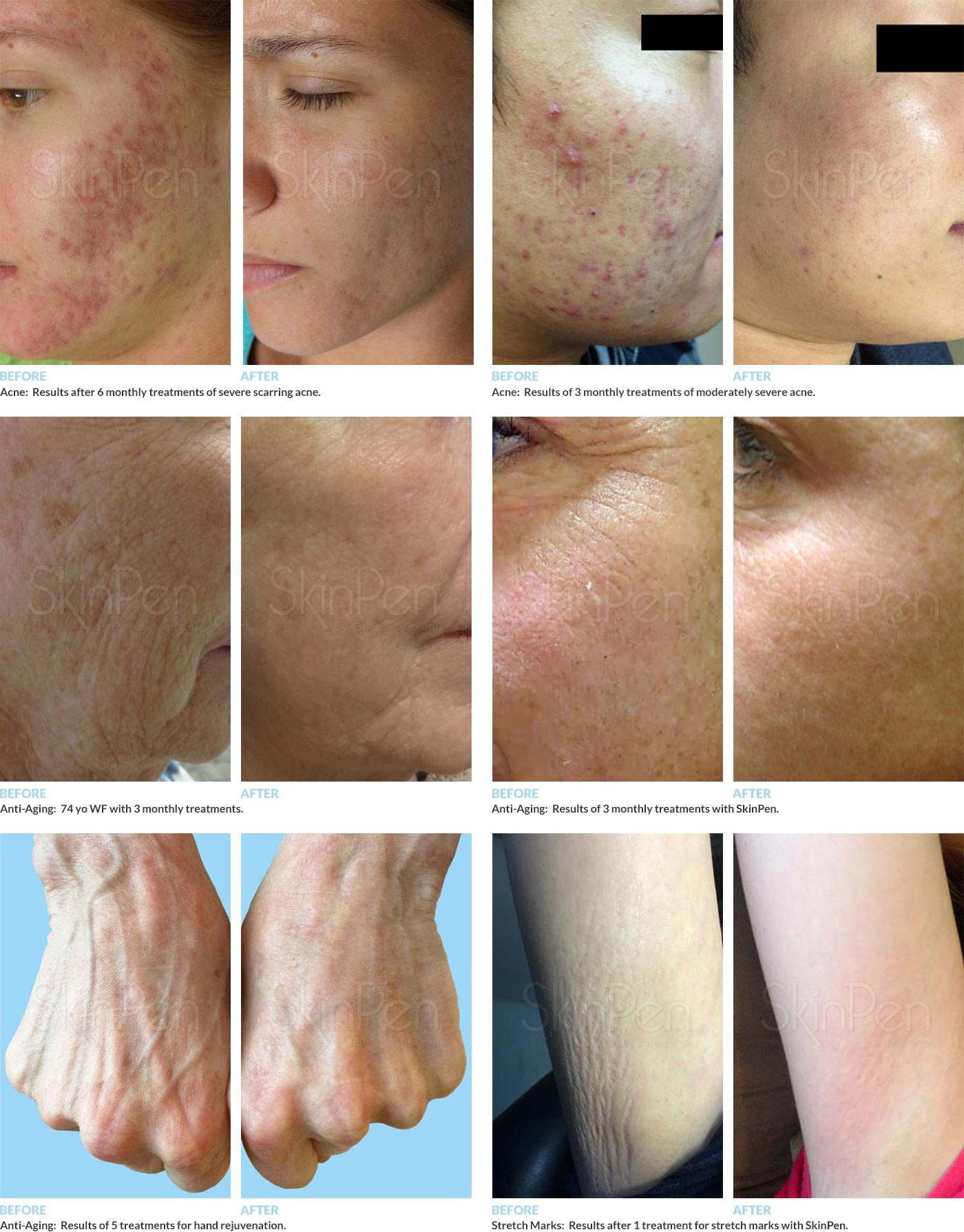 Before and After Pictures of Treatment with the SkinPen
