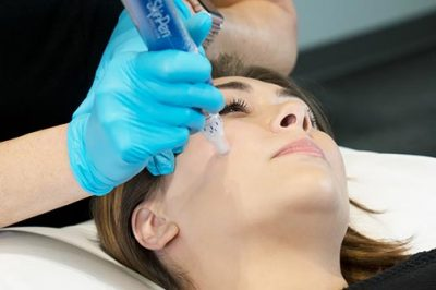 SkinPen, a microneedling treatment by Bellus Medical