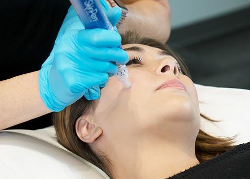 SkinPen by Bellus Medical