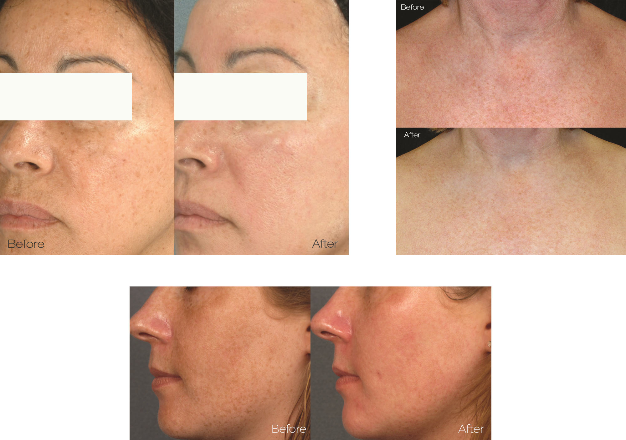 Before and After Photos of LimeLight IPL Treatments