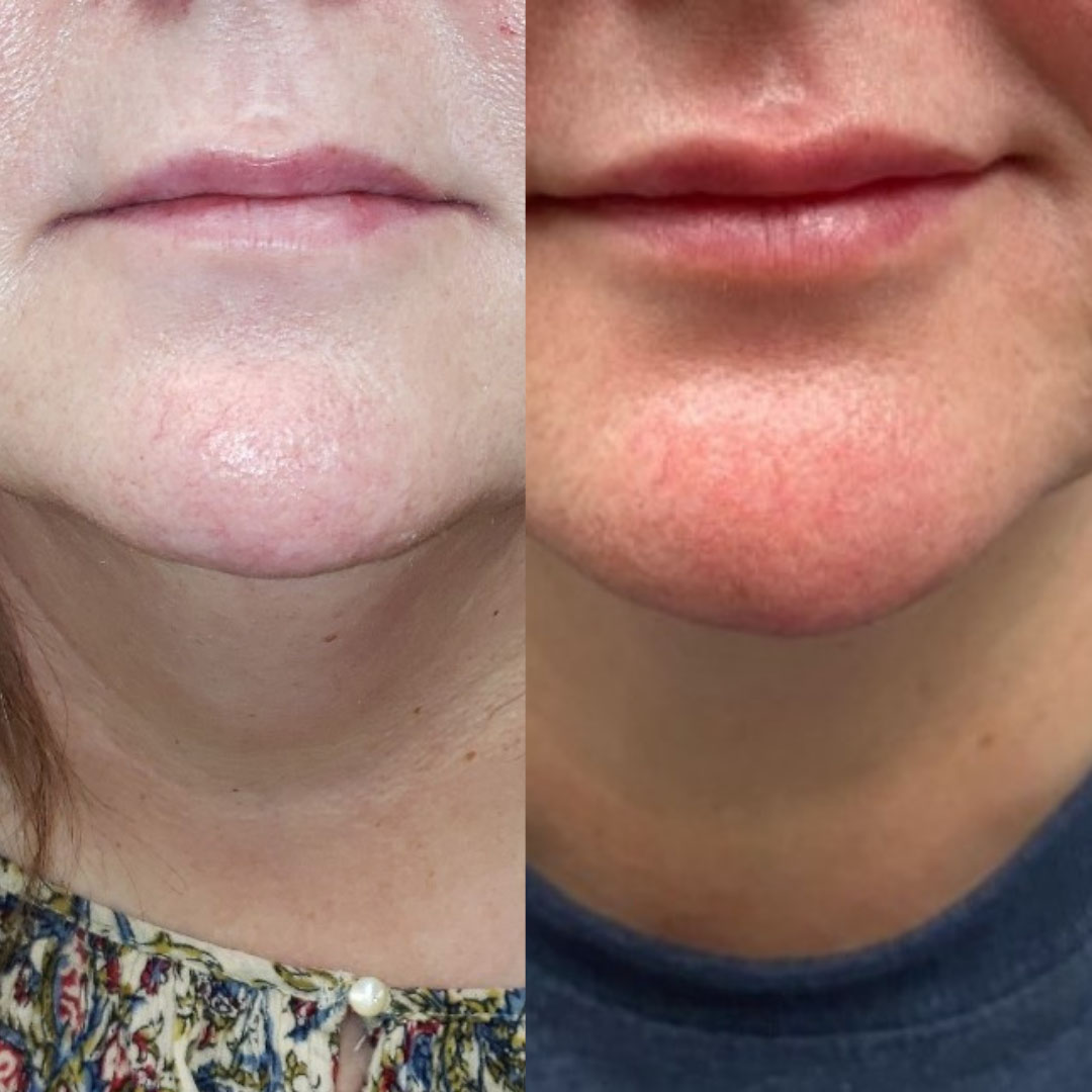 Before and After Photos of Injectable (Filler) Treatments