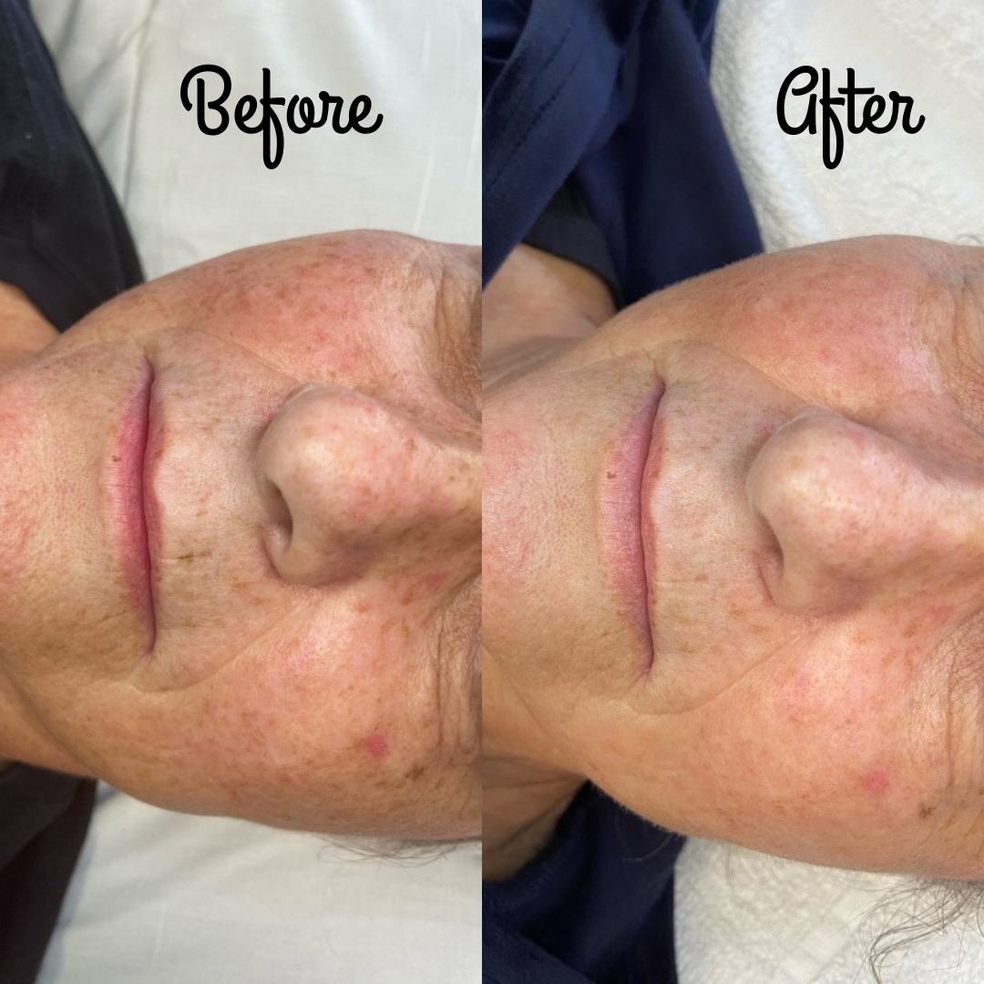 Before and After Photos of IPL Treatments